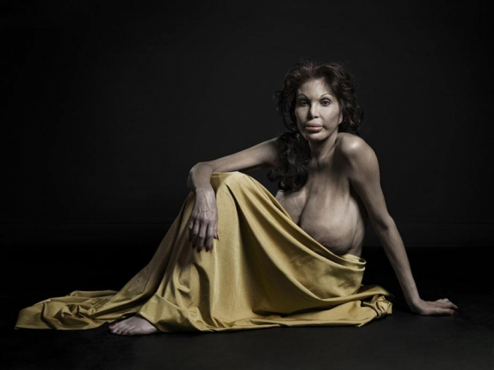 A new kind of beauty, fotografías de  Phillip Toledano. Cirugía estética extrema.